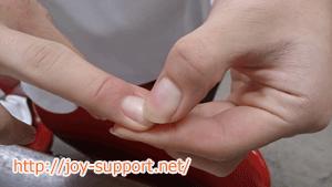 熱中症の診断-爪をおさえる